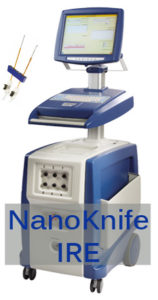 nanoknife ire prostate cancer