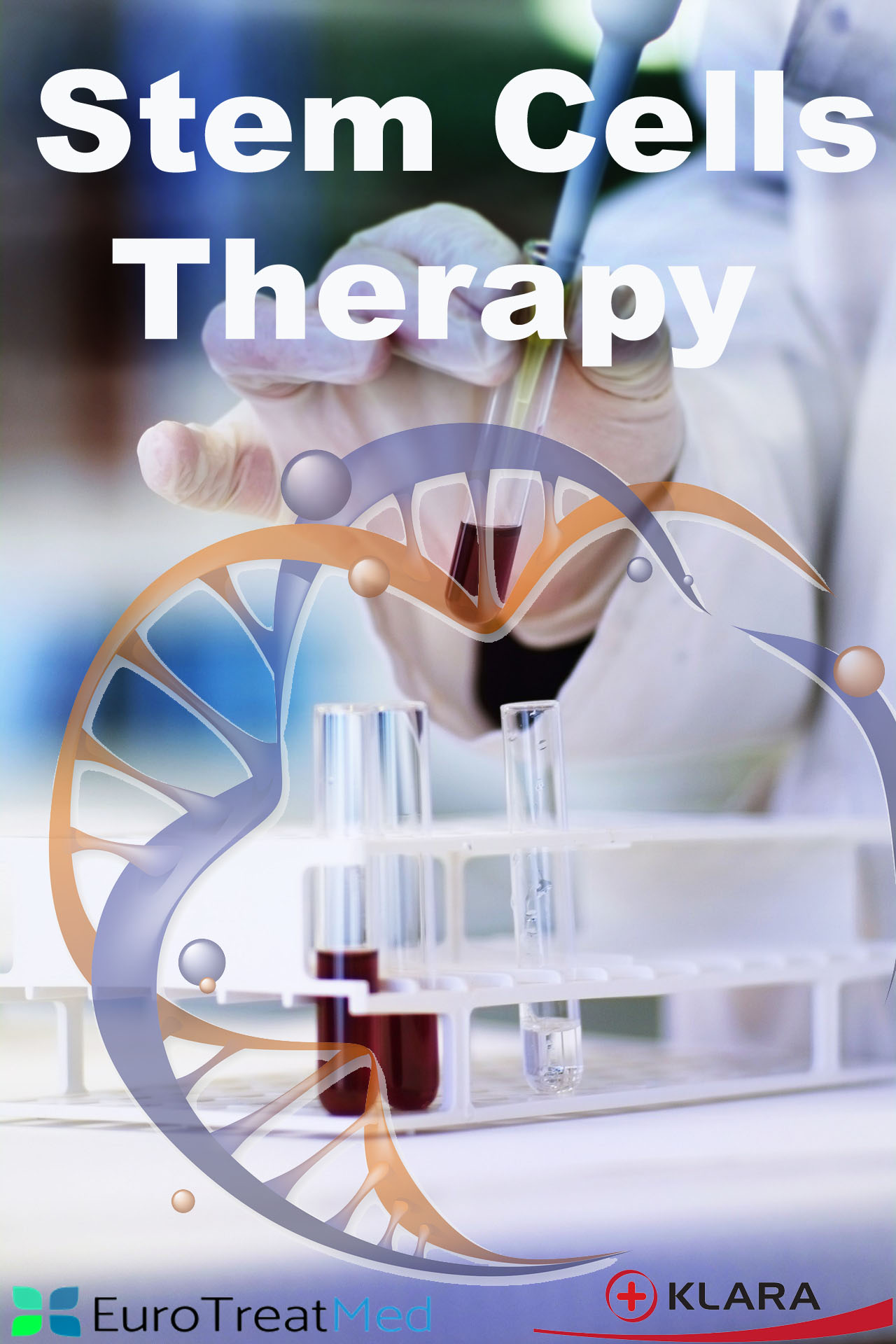 Stem Cell Therapy Stem Cell Treatment Abroad Eurotreatmed