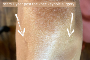knee arthroscopy cost uk and abroad